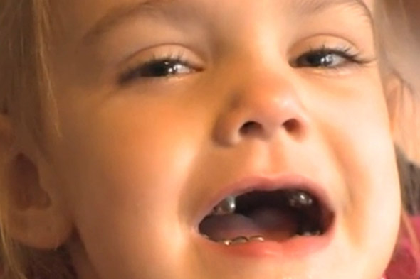 Girl , 4, has every single tooth capped with a silver crown during trip to dentist
