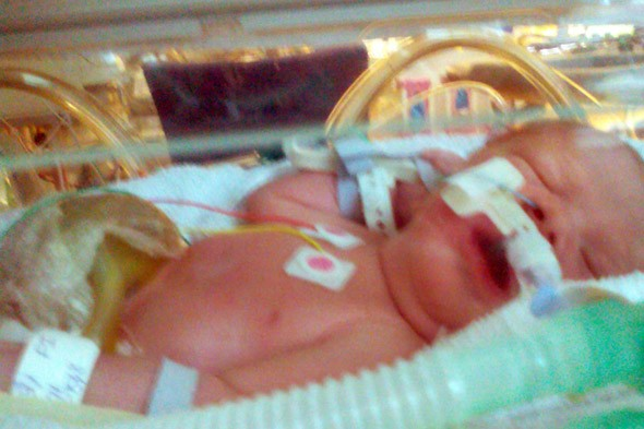 Baby born with liver, intestines and bladder outsider her body