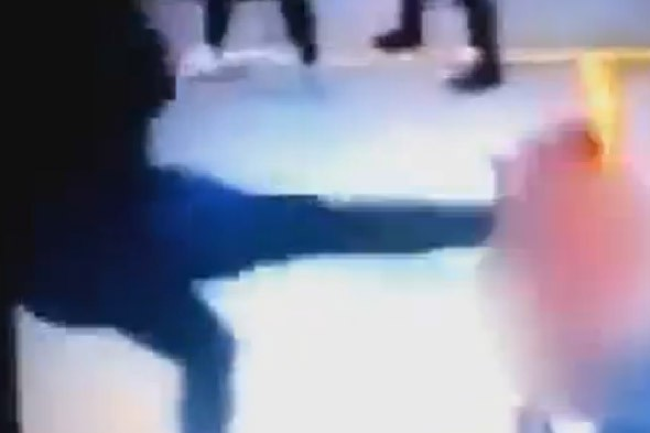 Schoolgirl kicked in face by ginger bullies