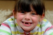 Five-year-old girl loses tooth after biting into Domino's pizza - and metal base