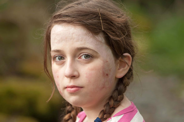 Little girl fought for her life after head lice lotion set her head and face alight
