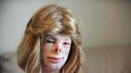 Teenager Terri prepares to leave school after suffering 85% burns in a house fire