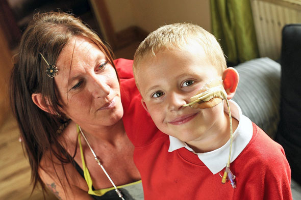 Mum's struggle for awareness for the six-year-old boy who is allergic to ALL foods
