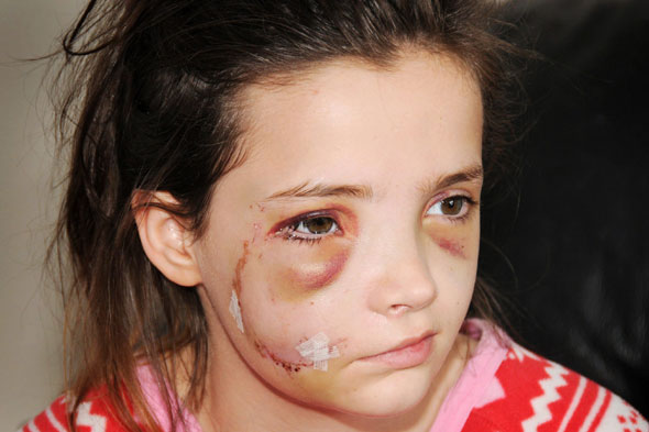 Girl, 13, has 48 stitches after being savaged by German Shepherd in country park