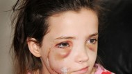 Girl, 13, has 48 stitches after being savaged by dog in park