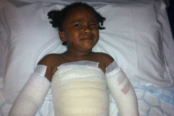 Two-year-old girl falls face first into barbecue in park