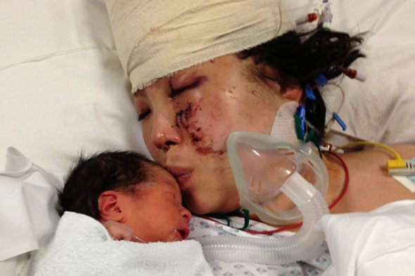 Mum gives birth while fighting for her life after horror car smash