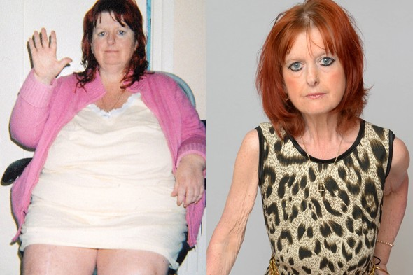 Starvation fears of gastric bypass mum who can't stop shrinking