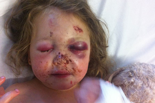 Girl, 3, blinded by hit-and-run boy racer bikers