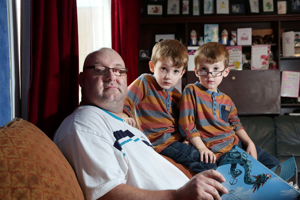 Tooth implant helped blind dad see his twin sons for first time