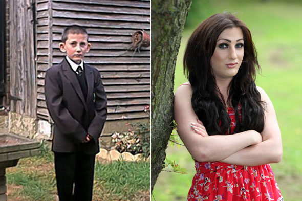 Boy bullied for big ears becomes FEMALE glamour model