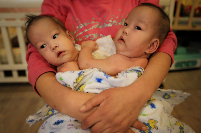 Conjoined baby girls abandoned at orphanage in China