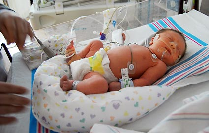 premature baby at new york university nicu