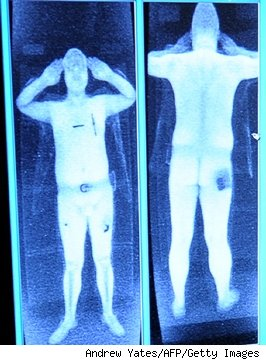 Practice TSA X ray Test http://susansspecialneeds24052.blogspot.com/2010/11/tsa-scanners-explaining-your-mastectomy.html