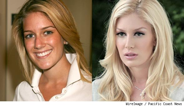 heidi montag after surgery. heidi montag after surgery