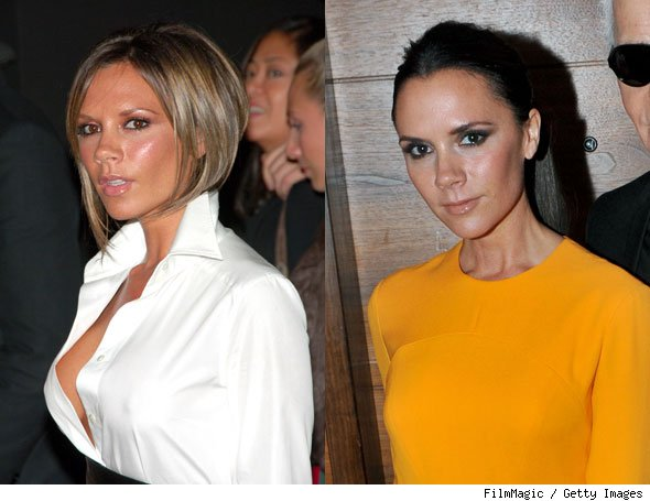 Victoria Beckham Admits to Implant Removal in Vogue UK