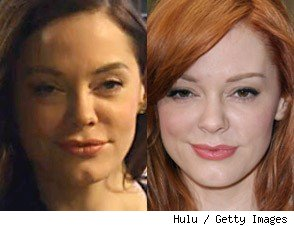 Expert Weighs In: Did Rose McGowan Get More Plastic Surgery?