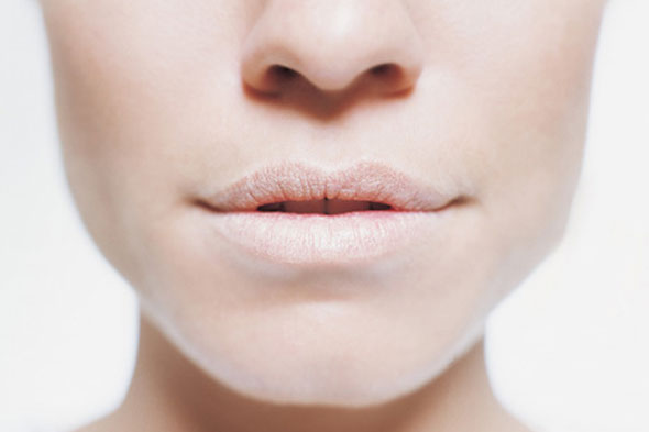 Woman with chapped lips