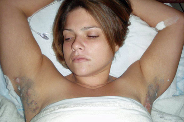 hairy woman armpit: