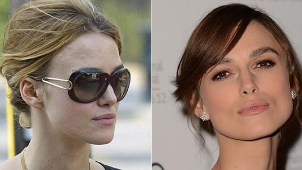 Clearing Up: Bad Celebrity Skin Before and After