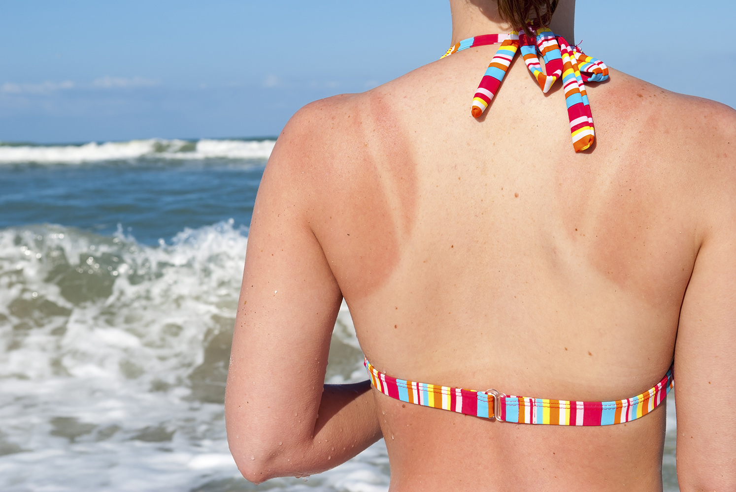 The Best (and Easiest!) At-Home Remedies for Sunburn