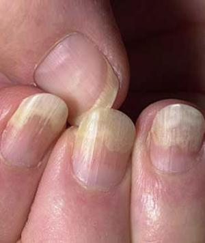 Cracked Toenails Causes, Repair, Horizontally, Vertically ...