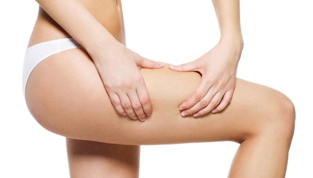 8 Quick Tips for Preventing & Treating Cellulite