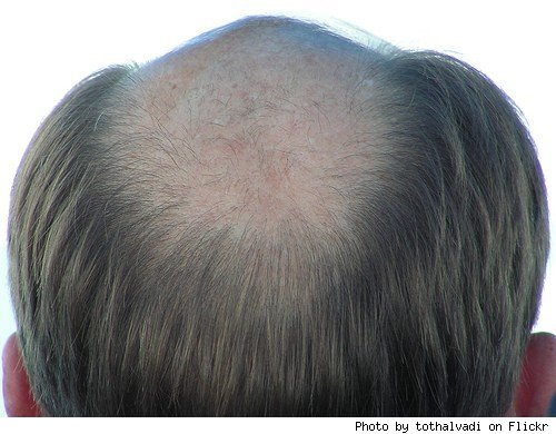 balding men hairstyles. Thinning and alding hair can