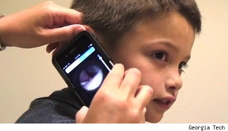 Using an iPhone to detect ear infections