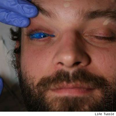 Crazy body modification – scarring, branding, eyeball tattoos and more