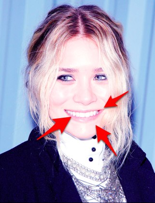 the olsen twins teeth are older than justin bieber