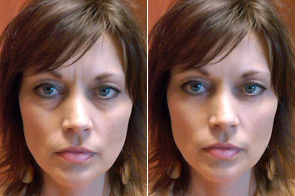 Cosmetic Surgery Bags Under Eyes Treatment Sema Data Co Op