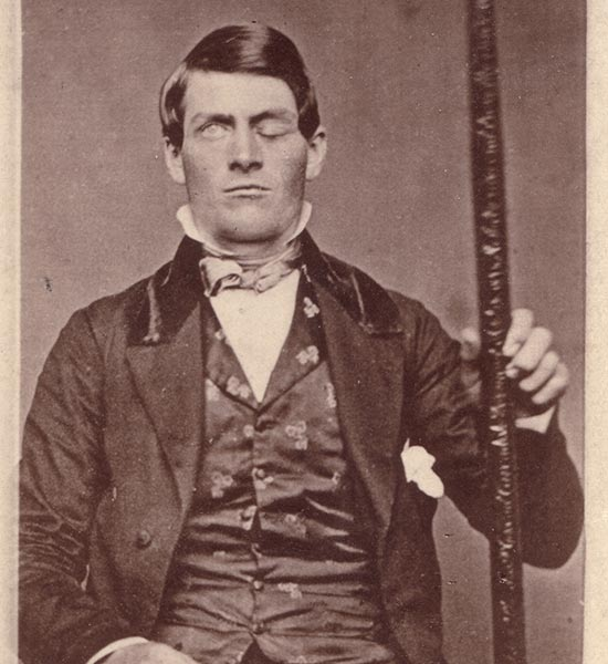 Weird Neurological Disorders, PHINEAS GAGE