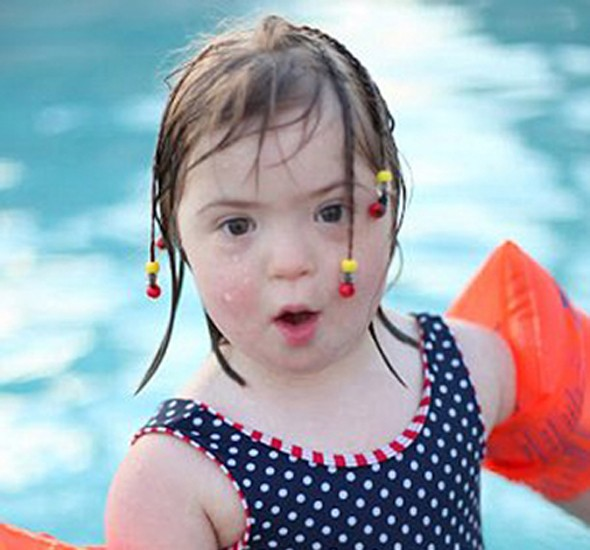 Model Behaviour: Five-Year-Old Girl With Down's Syndrome ...