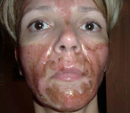 Facial numbness from chemicals